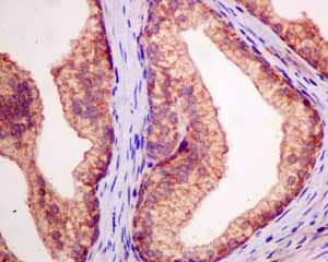 Immunohistochemistry (Formalin/PFA-fixed paraffin-embedded sections) - Anti-DTYMK antibody [EPR10163] (ab154867)