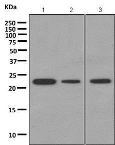 Western blot - Anti-DTYMK antibody [EPR10163] (ab154867)