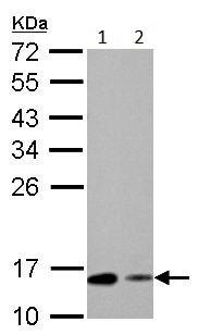 Western blot - Anti-RBP1 antibody (ab154881)