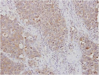 Immunohistochemistry (Formalin/PFA-fixed paraffin-embedded sections) - Anti-RPL3 antibody (ab154882)