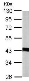 Western blot - Anti-IDH3A antibody (ab154886)