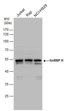 Western blot - Anti-hnRNP H antibody (ab154894)