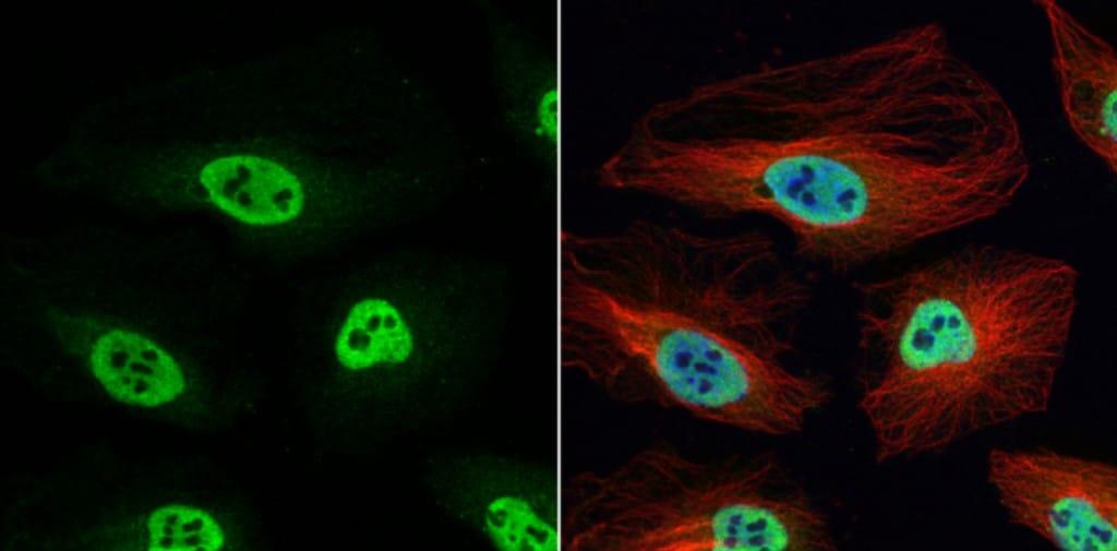 Immunocytochemistry/ Immunofluorescence - Anti-hnRNP H antibody (ab154894)