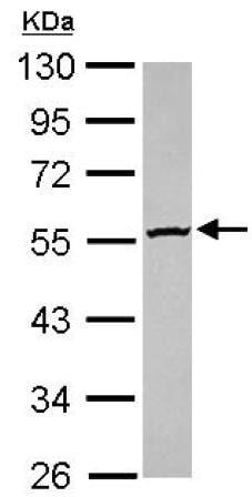 Western blot - Anti-GBA3 antibody (ab154897)