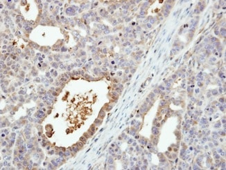 Immunohistochemistry (Formalin/PFA-fixed paraffin-embedded sections) - Anti-MKK6 antibody (ab154901)