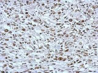 Immunohistochemistry (Formalin/PFA-fixed paraffin-embedded sections) - Anti-THAP11 antibody (ab154942)