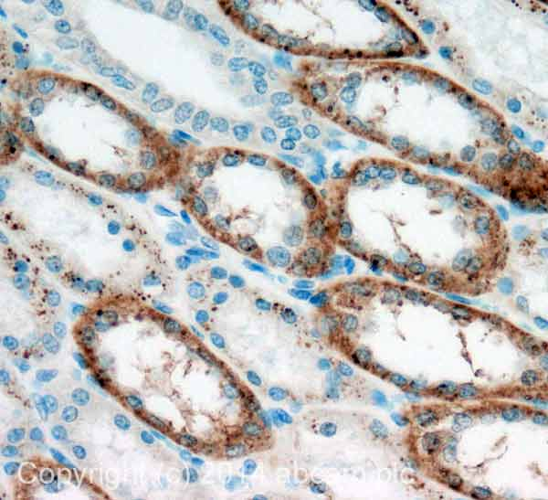 Immunohistochemistry (Formalin/PFA-fixed paraffin-embedded sections) - Anti-OMA1  antibody (ab154949)