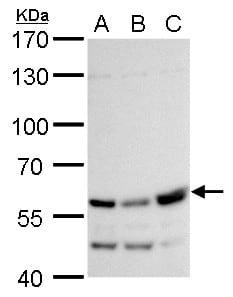 Western blot - Anti-RTKN/Rhotekin antibody (ab154954)