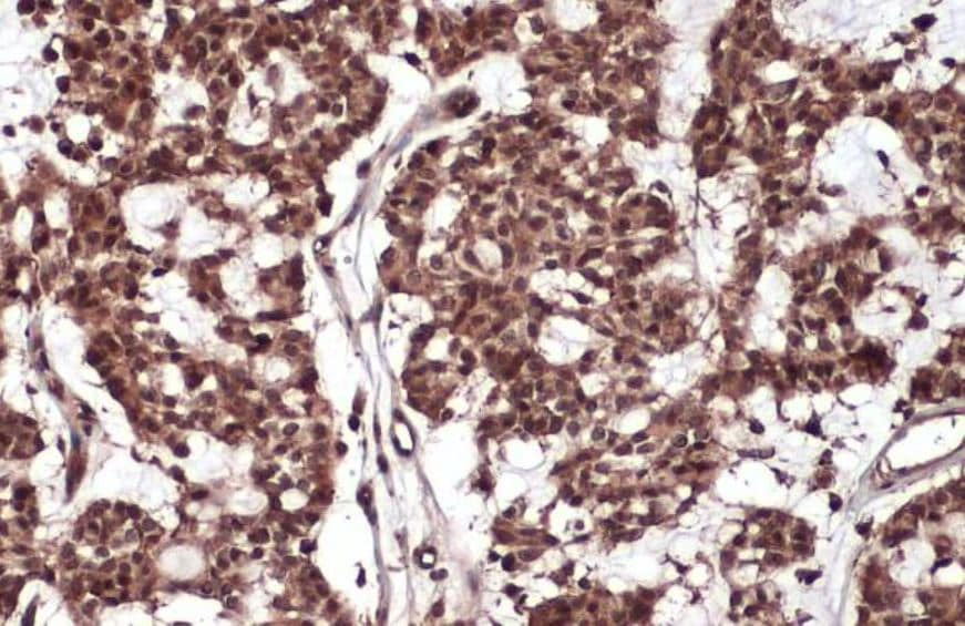 Immunohistochemistry (Formalin/PFA-fixed paraffin-embedded sections) - Anti-Rel B antibody (ab154957)