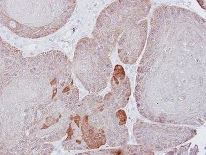 Immunohistochemistry (Formalin/PFA-fixed paraffin-embedded sections) - Anti-Proteasome 26S S3/PSMD3 antibody (ab154963)