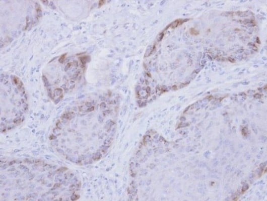 Immunohistochemistry (Formalin/PFA-fixed paraffin-embedded sections) - Anti-RRM2 antibody (ab154964)