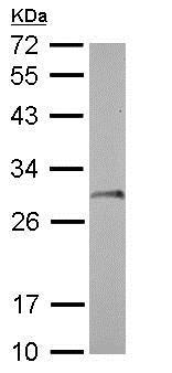 Western blot - Anti-SDHB antibody (ab154974)