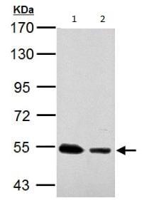 Western blot - Anti-SSB antibody (ab154998)