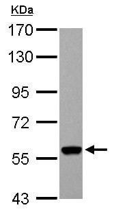 Western blot - Anti-UGDH antibody (ab155005)