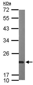 Western blot - Anti-SR1 antibody (ab155015)