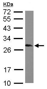 Western blot - Anti-SNRPB/SmB antibody (ab155026)