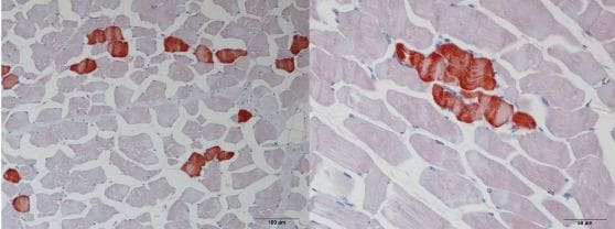 Immunohistochemistry (Formalin/PFA-fixed paraffin-embedded sections) - Anti-Troponin T1/TNT antibody (ab155028)