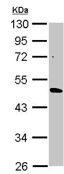 Western blot - Anti-CYP3A43 antibody (ab155029)