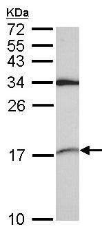 Western blot - Anti-SNRPD2 antibody (ab155030)