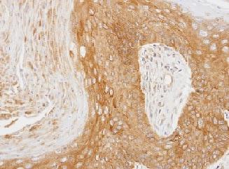 Immunohistochemistry (Formalin/PFA-fixed paraffin-embedded sections) - Anti-14-3-3 zeta antibody (ab155037)