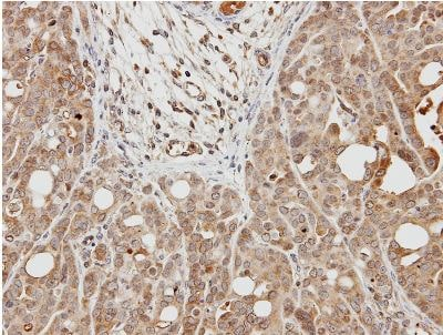 Immunohistochemistry (Formalin/PFA-fixed paraffin-embedded sections) - Anti-Cardiac Troponin I antibody (ab155047)