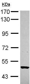 Western blot - Anti-BMPR1B antibody (ab155058)