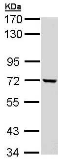 Western blot - Anti-C1r antibody (ab155060)