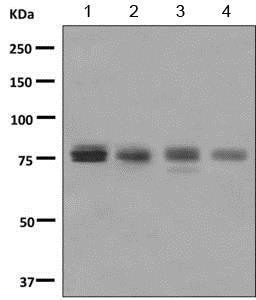 Western blot - Anti-ZNF175 antibody [EPR8391(2)] (ab155075)