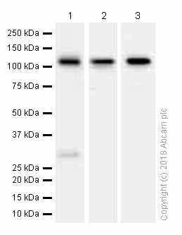 Western blot - Anti-PKN3 antibody [EPR3511(2)] (ab155076)