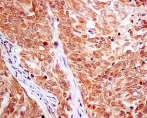 Immunohistochemistry (Formalin/PFA-fixed paraffin-embedded sections) - Anti-CKS2 antibody [EPR7946(2)] (ab155078)