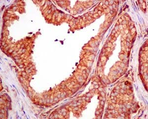 Immunohistochemistry (Formalin/PFA-fixed paraffin-embedded sections) - Anti-CAP1 antibody [EPR8339(B)] (ab155079)