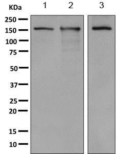 Western blot - Anti-CPS1 antibody [EPR7493-29] (ab155083)