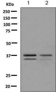 Western blot - Anti-PHOX2A antibody [EPR9071] (ab155084)