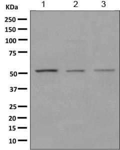 Western blot - Anti-HARS antibody [EPR9451] (ab155087)
