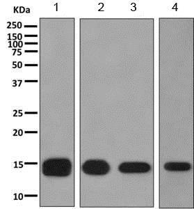 Western blot - Anti-FABP12 antibody [EPR10536] (ab155089)