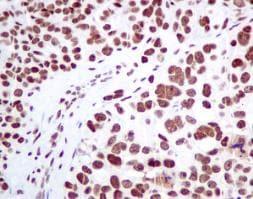 Immunohistochemistry (Formalin/PFA-fixed paraffin-embedded sections) - Anti-MPG/AAG antibody [EPR10959(B)] (ab155092)