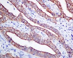 Immunohistochemistry (Formalin/PFA-fixed paraffin-embedded sections) - Anti-Frizzled 8 antibody [EPR7308(2)] (ab155093)