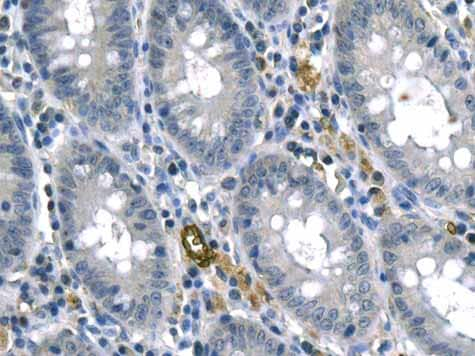 Immunohistochemistry (Formalin/PFA-fixed paraffin-embedded sections) - Anti-RHAG antibody [EPR10011] (ab155094)