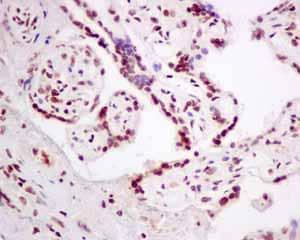 Immunohistochemistry (Formalin/PFA-fixed paraffin-embedded sections) - Anti-PLK1 (phospho T210) antibody [EPNCIR167] (ab155095)
