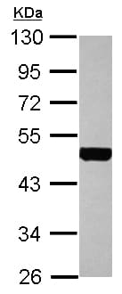 Western blot - Anti-Cytokeratin 18 antibody (ab155125)