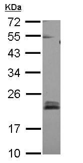 Western blot - Anti-RHOB antibody (ab155149)