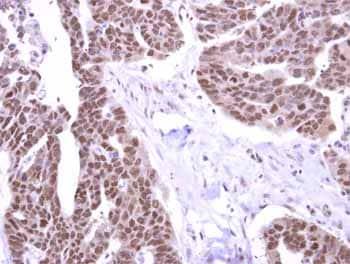 Immunohistochemistry (Formalin/PFA-fixed paraffin-embedded sections) - Anti-STK31 antibody (ab155172)