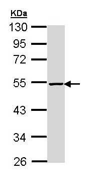 Western blot - Anti-PIP4K2 beta antibody (ab155186)
