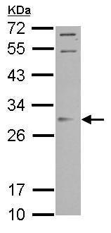 Western blot - Anti-Orai2 antibody (ab155216)