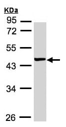 Western blot - Anti-YL1 antibody (ab155237)