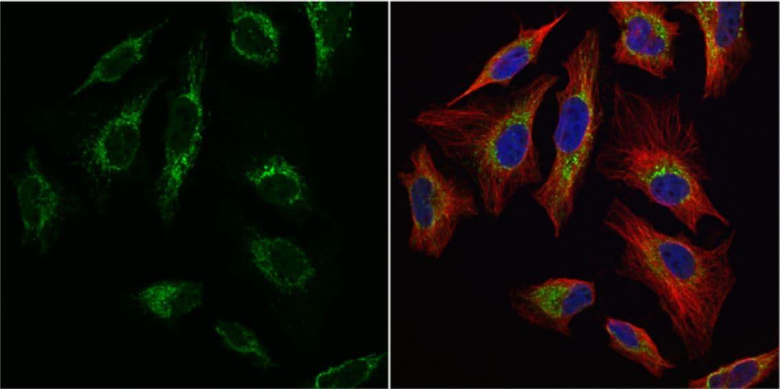 Immunocytochemistry/ Immunofluorescence - Anti-mtTFA antibody (ab155240)