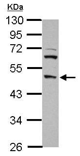 Western blot - Anti-DP2 antibody (ab155246)
