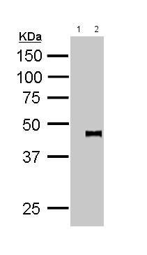 Immunoprecipitation - Anti-PYGO2 antibody (ab155262)