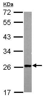 Western blot - Anti-TAGLN/Transgelin antibody (ab155272)