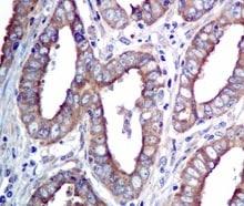 Immunohistochemistry (Formalin/PFA-fixed paraffin-embedded sections) - Anti-AlaRS antibody [EPR11037(B)] (ab155275)